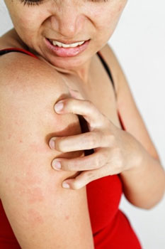 Skin Allergies Have Become More Common