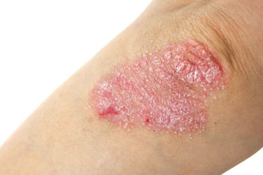 Psoriasis Linked to Heart Disease